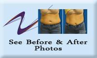 Weight Loss Greensburg